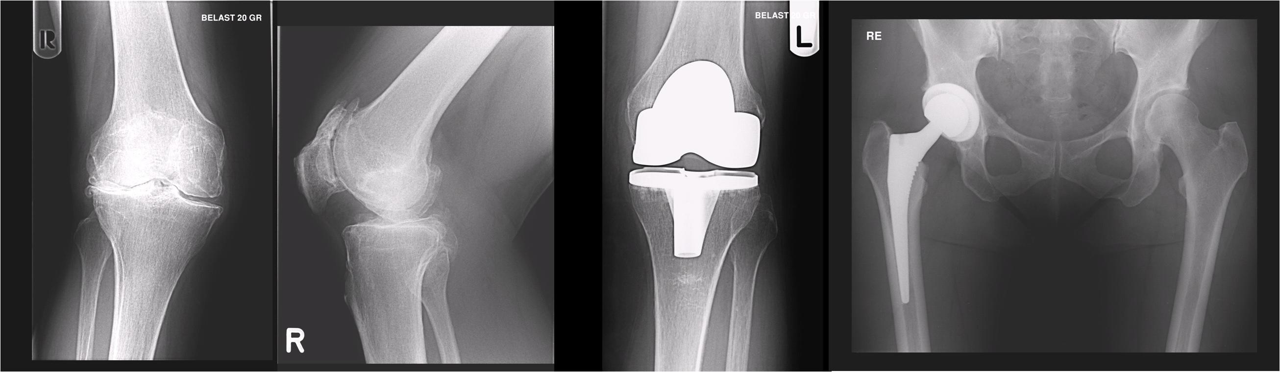 Alles over röntgenstraling